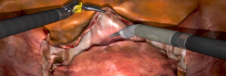 Medizinische Simulation Hysterektomie mit Virtual Reality
