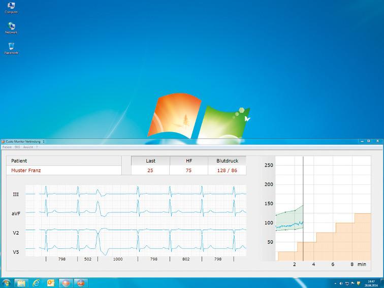 Belastungs EKG Diagnostik mit PC im Netzwerk und integriert in Praxis EDV der Schweizer Arztpraxis