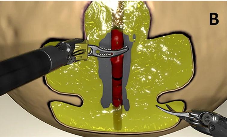 Dissektion Blutgefäss da Vinci Roboter mit Simulator üben