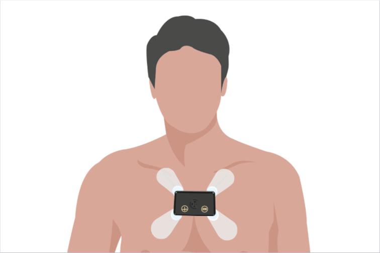 langzeit EKG 7 Tage Holter für Schweizer zu preiswerten Kosten