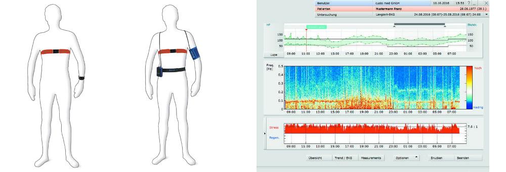 24 Stunden Blutdruck Messung mit Holter oder Uhr