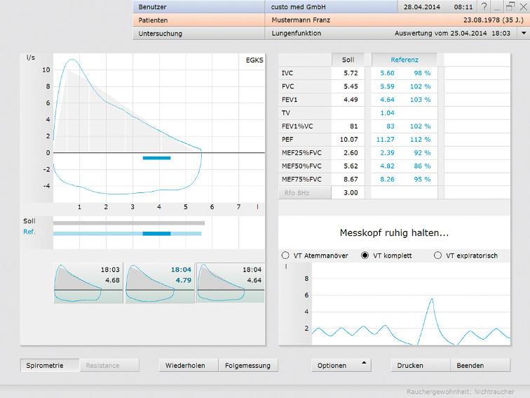 Spirometrie kardopulmonale Diagnostik Software Schweiz