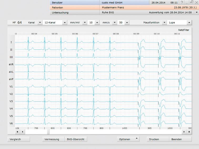 Ruhe EKG mit Erweiterung zu Messplatz mit Belastungs EKG custo med in der Schweiz